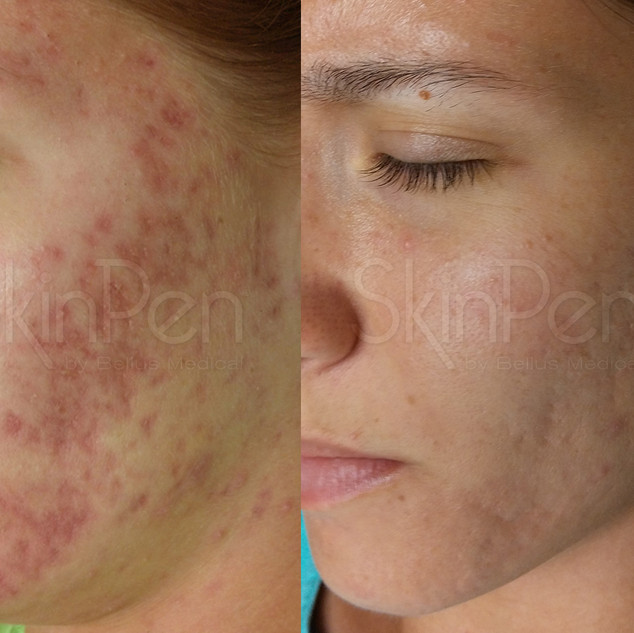 Acne Scarring x6 treatments --wm.jpg