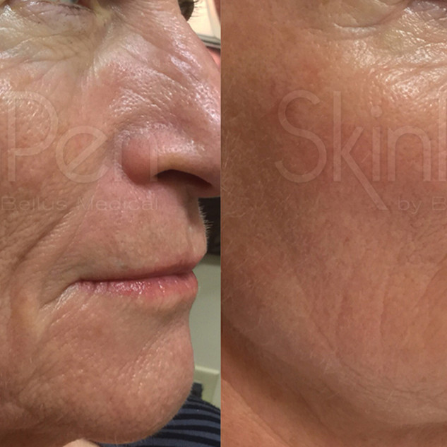 Anti Ageing - Crop x2 Treatments age 66