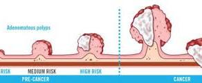 Types of colon screening