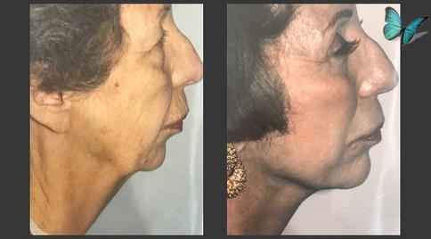 Dermabrasion Patient 2