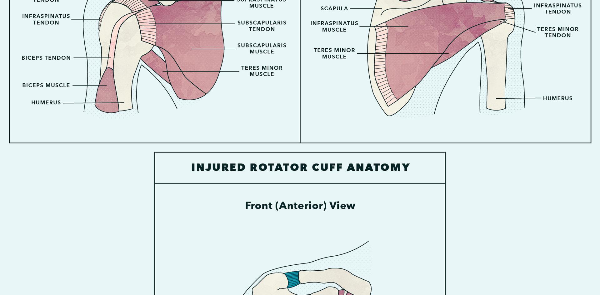 Rotator Cuff.png