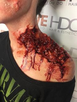 Neck wound