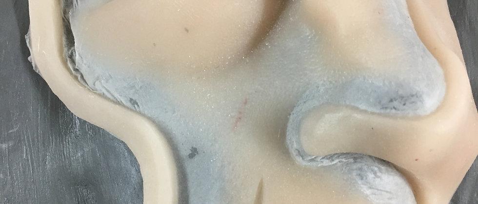 Trauma eye, lip, nose Right side