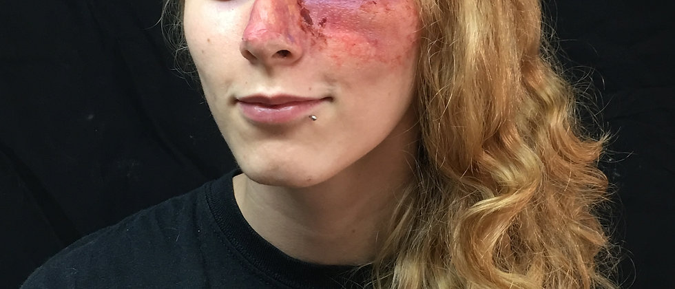 Trauma Swollen Left eye and nose #1