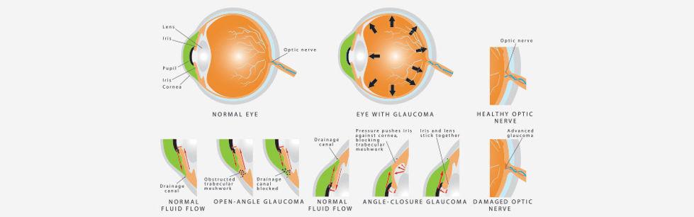 glaucoma, treatment, fairbanks ak, glaucoma treatment in alaska, eye doctor, vision care, optic nerve