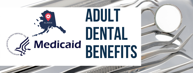 Medicaid dental benefits Fairbanks