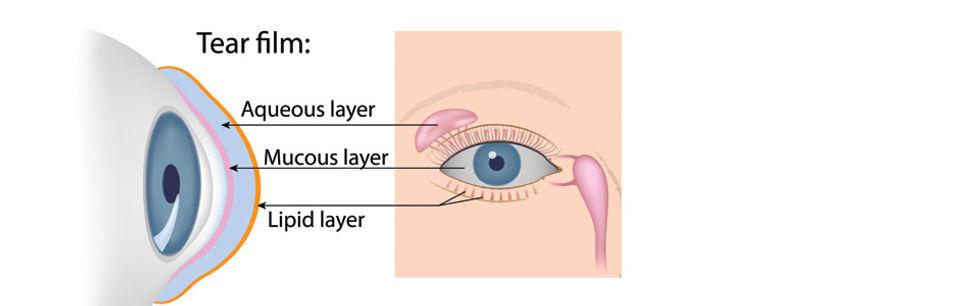 dry eye, fairbanks dry eye, alaska, tearing, mucous, eyes hurt, eye doctor, optometrist
