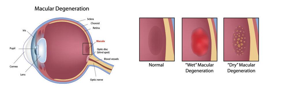 macular, degeneration, eye, fairbanks, wet macular degeneration, dry macular degeneration, treatment, surgery