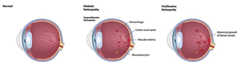 diabetic, eye, disease, vison, care, diabetes eye doctor, fairbanks ak