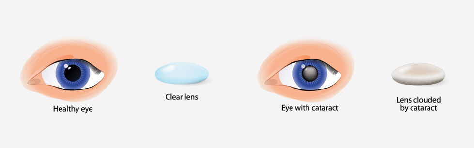 cataract, eye surgery, cataract surgery, blurry vision, eye clinic of fairbanks