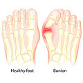 bunion treatment and removal