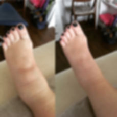 Swollen feet and ankles reduced with reflexology