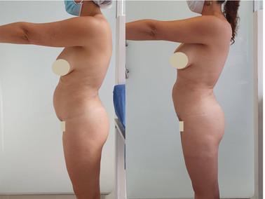 Laserlipolisis contorno corporal