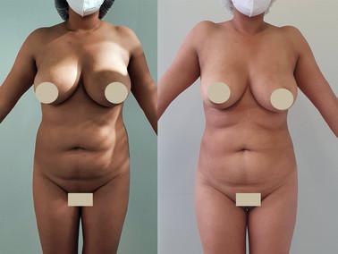 Laserlipolisis reduccion de medidas abdomen 10 días de evolución