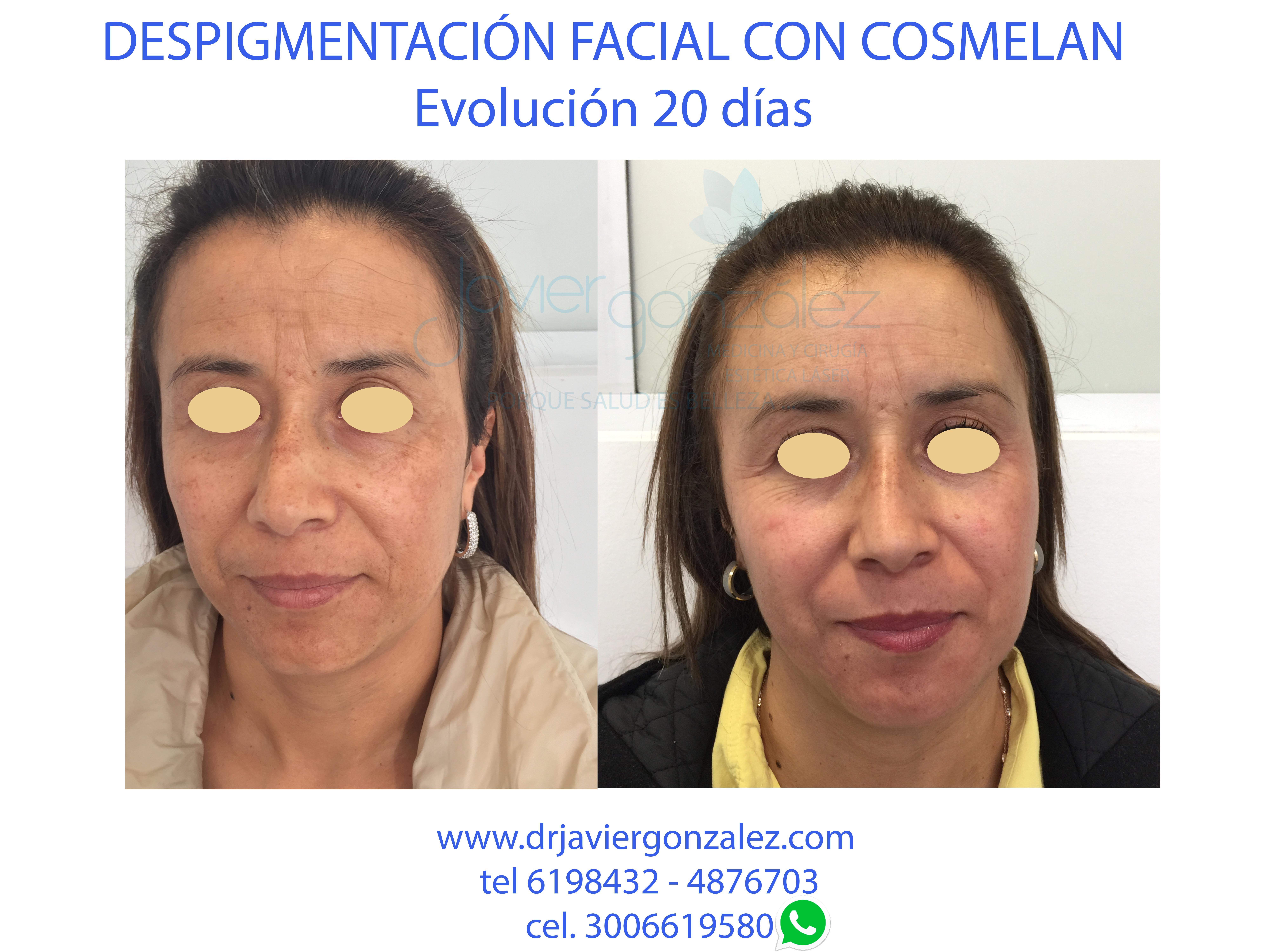 cosmelan2