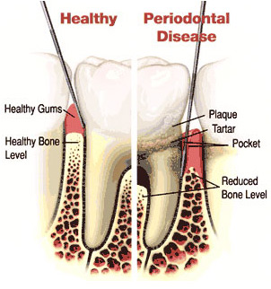 periodontal+dentistry