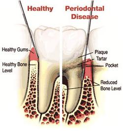 periodontal+dentistry