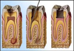 root+canal+therapy