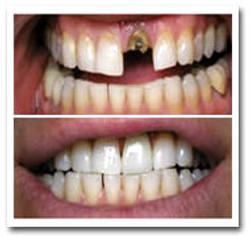 dental+crowns