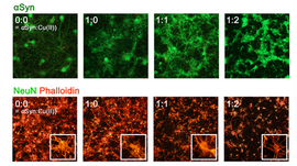 Toxicity test on primary neuron cells