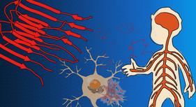 Neurodegenerative disease study