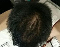 Photo of scalp after being treated with Avante Hair Restoration Serum - week 12