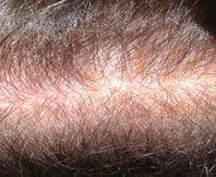 Photo of scalp after being treated with Avante Hair Restoration Serum