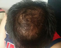 Photo of scalp before being treated with Avante Hair Restoration Serum