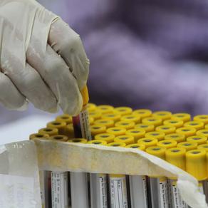 Xét nghiệm kháng thể không nên được dùng để kiểm tra miễn dịch COVID
