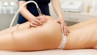 Vacuum Therapy (Cellulite Reduction)