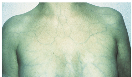 Skin Manifestations in vEDS