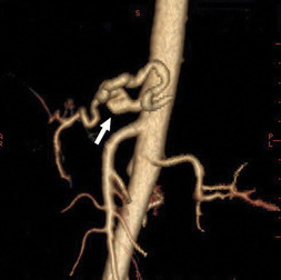 CT Angiography (CTA) in a vascular EDS patient