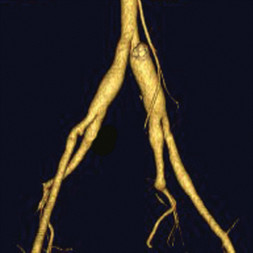 CT Angiography in a woman with vascular Ehlers-Danlos syndrome