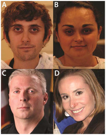 Characteristic Facial Features in vascular Ehlers-Danlos Syndrome