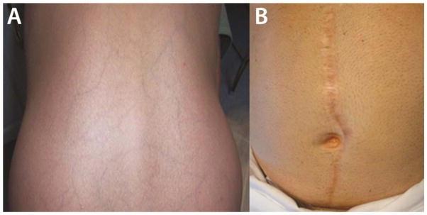 Skin Manifestations of vEDS