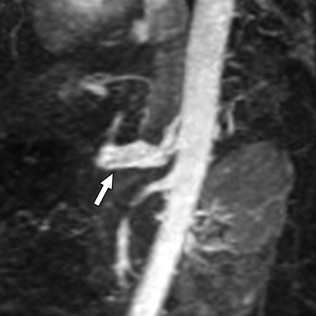 MR angiography in a vEDS patient