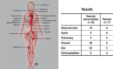 Distribution of vascular findings
