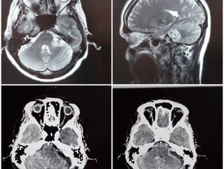 Невринома слухового нерва слева