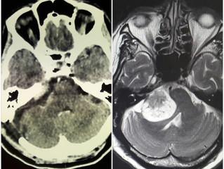Невринома слухового нерва справа
