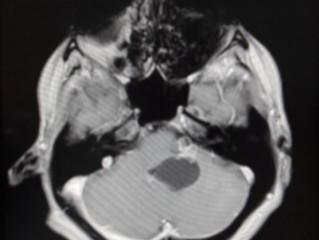 Эпидермоидная киста задней черепной ямки