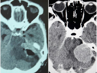 Невринома слухового нерва слева & Лицевой гемиспазм слева.