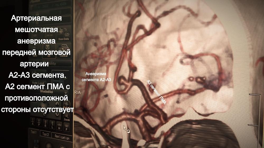 На КТ-ангиографии выявлена аневризма передней мозговой артерии А2-А3 сегмента. При этом А2 сегмент ПМА противоположной стороны отсутствует,что свидетельствует о том, что это единственный артериальный сосуд кровоснабжающий обе лобные доли. Это обстоятельство делает невозможным повреждение этой артерии или изменение кровотока в ней во время клипирования!!!во время операции