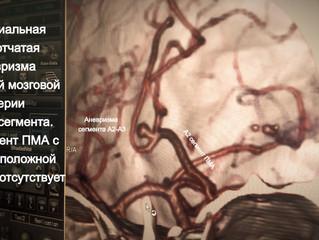 Дистальная артериальная аневризма ПМА, А2-А3 сегмента. ОНМК, субарахноидальное кровоизлияние.