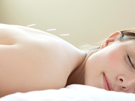 Acupuncture Basics