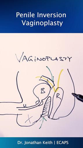 IGT Vaginoplasty.mp4
