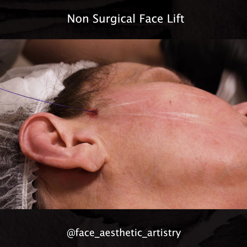 Non surgical Face lift.mp4