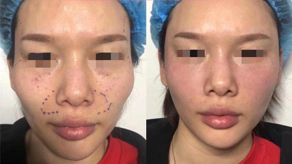 去扁平疣acne removal