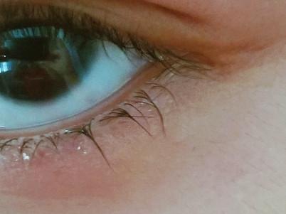 my crying eye