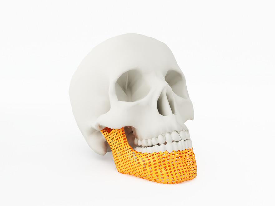 3D-printing-medical-devices.jpg
