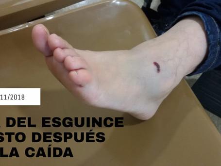 CASO CLÍNICO ESGUINCE TOBILLO